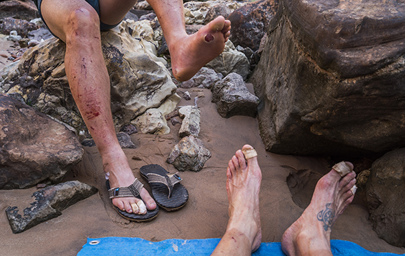 The blisters of fun. High temps, sweat, sand and angled walking make for tough feet. Marble Canyon.